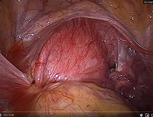 Laparoscopic management of a functional non communicating uterine horn with hematometra