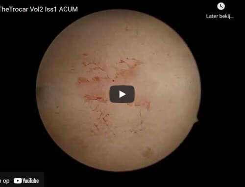 Laparoscopic management of a case of accessory cavitated uterine mass (ACUM)