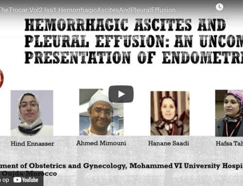 Hemorrhagic ascites and pleural effusion: an uncommon presentation of endometriosis