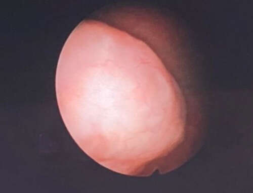 Hysteroscopic Myomectomy without Myoma Extraction in Postmenopausal Woman: A Case Report