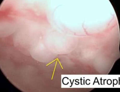 Senile Cystic Atrophy in Postmenopausal Women: Correlation between Hysteroscopic View with Histopathological Diagnosis and Serum Estradiol levels – Preliminary Analysis