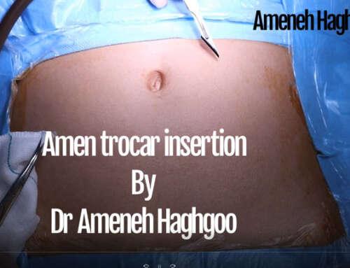 Introduction of a modified laparoscopy trocar insertion method (Amen Method)
